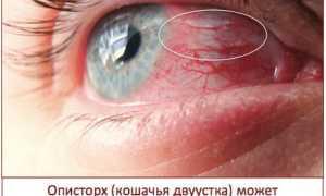 Черви в финиках: как определить наличие паразитов, и опасны ли они
