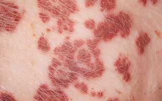 Болезни свиней: покрылись красными пятнами, что делать и как лечить